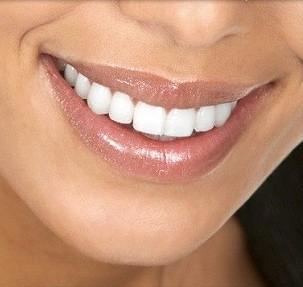 Seduta di igiene orale con visita e smacchiamento con air-flow. Ritrova il tuo sorriso naturale Dal Dottor Giachin nel cuore di Nervi.