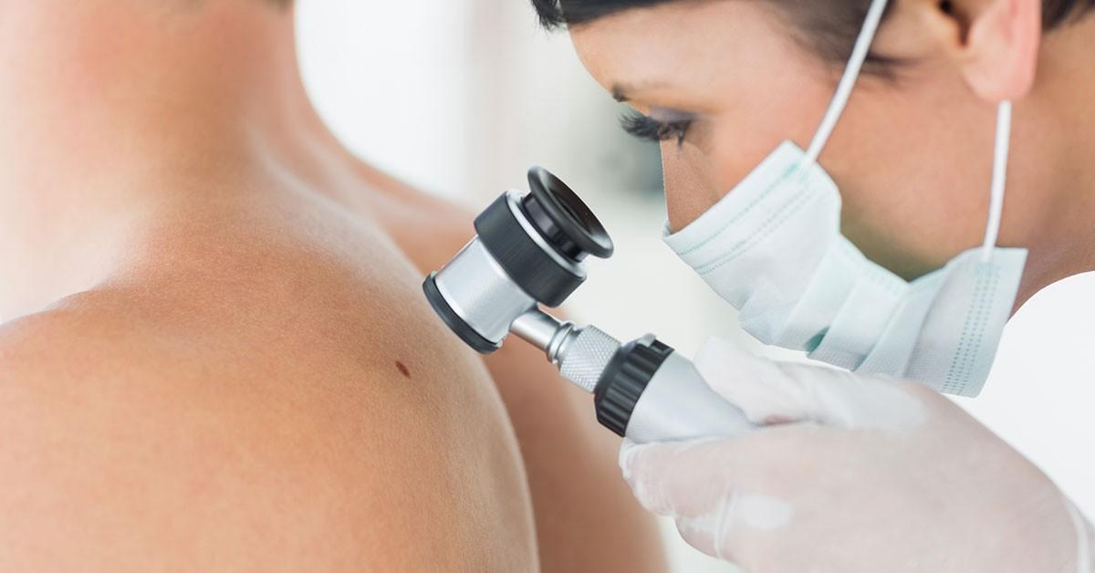 Prevenire è meglio che curare…Visita dermatologica e mappatura dei nei in epiluminescenza in centro dal Dott.Riziero Zamboni!