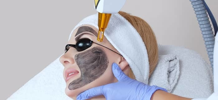 Novità!! Splendida idea regalo! 2 sedute di CARBOLASER al viso con maschera al collagene!